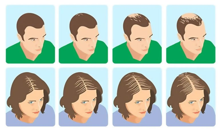 Regain confidence with hair restoration for men and women